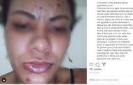 Mulher agredida a socos em Ilhéus faz relato em rede social; homem está foragido