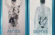 Imagens mostram regressão de câncer em paciente terminal após tratamento pioneiro na América Latina
